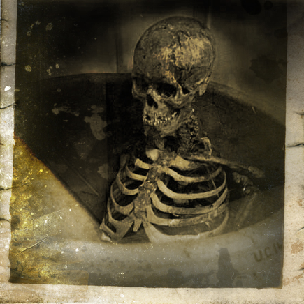 Skelly-Blog-Pic